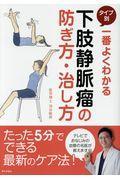 下肢静脈瘤の防ぎ方・治し方の本