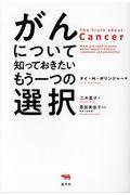 がんについて知っておきたいもう一つの選択の本