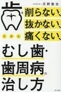 歯を削らない、抜かない、だから痛くない、むし歯・歯周病の治し方の本