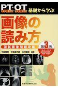 第3版 理学療法士・作業療法士PT・OT基礎から学ぶ画像の読み方国試画像問題攻略の本