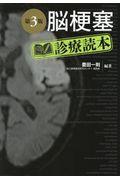 第3版 脳梗塞診療読本の本