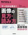 月刊ナーシング増刊 ケースから学ぶ!画像の見方・読み方 2021年 04月号の本